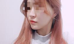 코.이마.애교필러♥턱보톡스