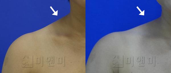 승모근보톡스 시술전후